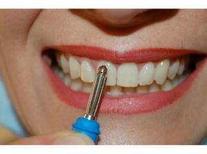 Denti e CL